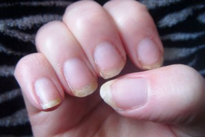 What Your Nails Can Tell You About Health